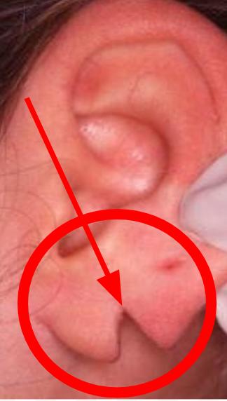 Torn earlobe Miami