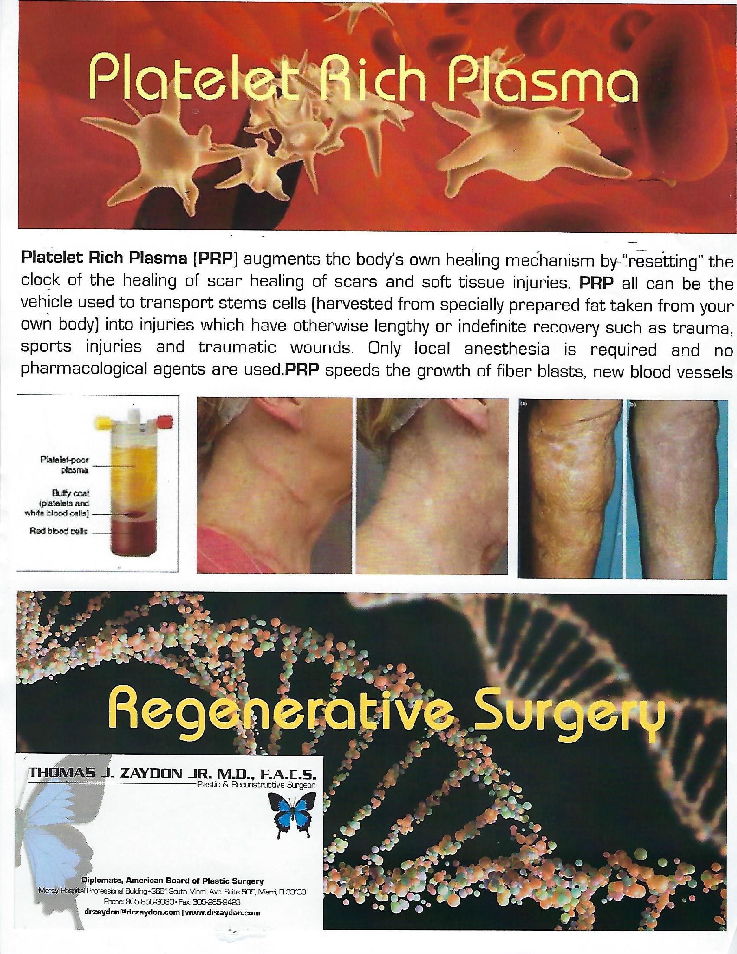 prp plastic surgery