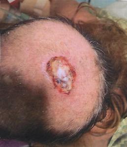 Skin cancer scalp - August 2019