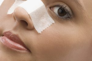 facial plastic surgeon for nasal fracture miami