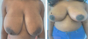 breast reduction before after