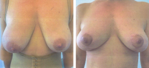 miami breast lift before after
