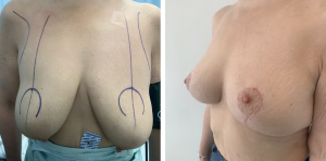breastlift miami