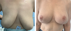 miami breastlift