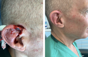 mohs surgery - reconstruction