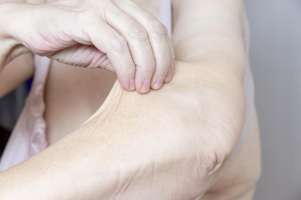 loose skin treatment miami